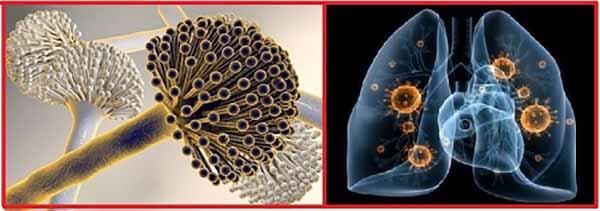 Грибок Aspergillus и ИВЛ