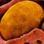 Тело человека - вместилище жира